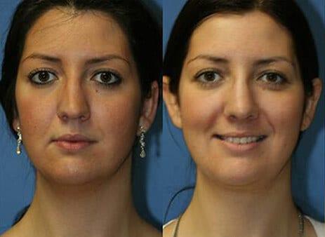 nose job specialist nyc