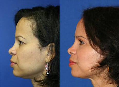 facial plastic surgeon