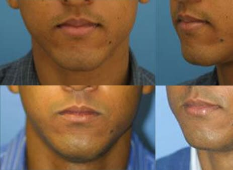 before after chin surgery