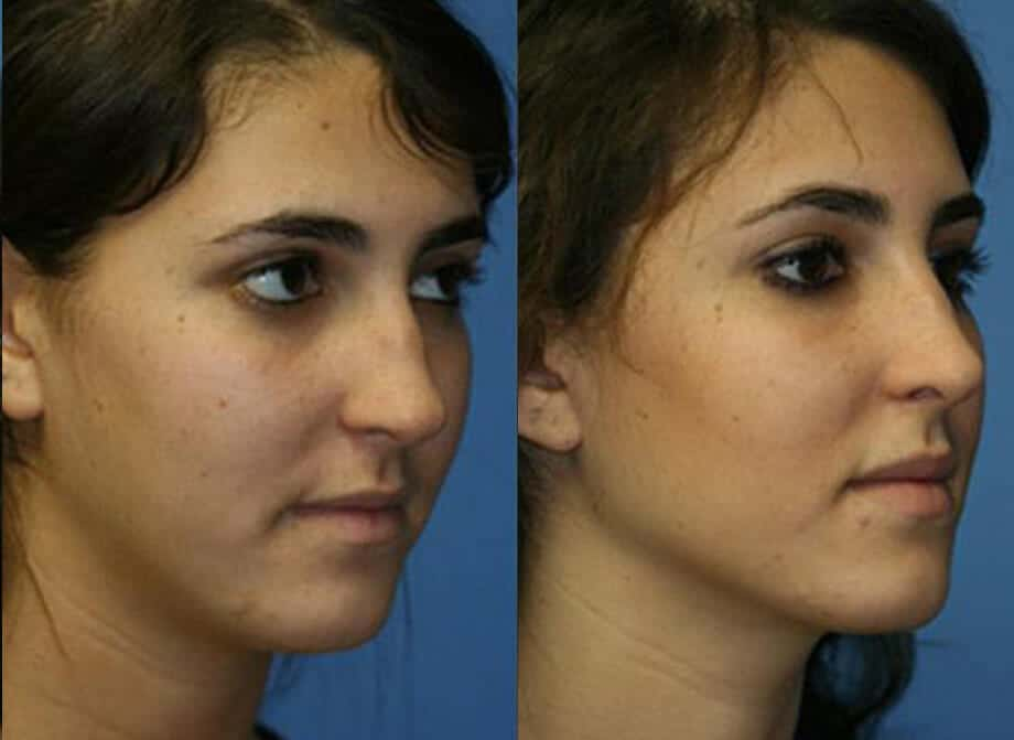 before after nose bump removal
