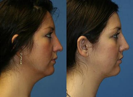 before after nose bump surgery
