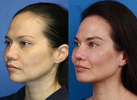 facial surgery specialist