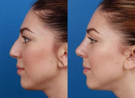 Facial Plastic Surgeon | Rhinoplasty Nose Jobs New York