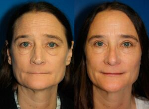 results of a nose job to look younger in NYC, NY