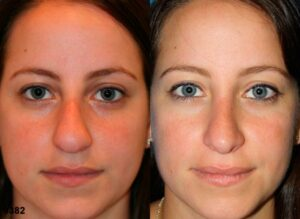 rhinoplasty results in NYC for common nose shape, roman nose