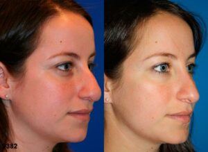 before and after image of rhinoplasty for snub shaped nose in NYC