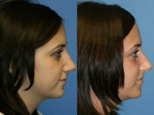 rhinoplasty results for greek shaped nose in NYC