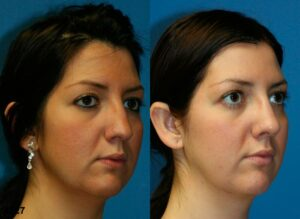 nose job for common nose shape of nubian nose in NYC