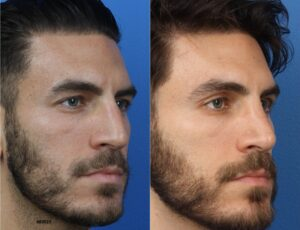 rhinoplasty results of top nose shape in NYC, NY