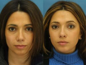 rhinoplasty results from best facial plastic surgeon in NYC