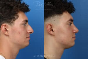 results from rhinoplasty treatment in NYC, NY