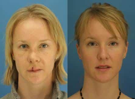 New York Nasal Reconstruction Procedure
