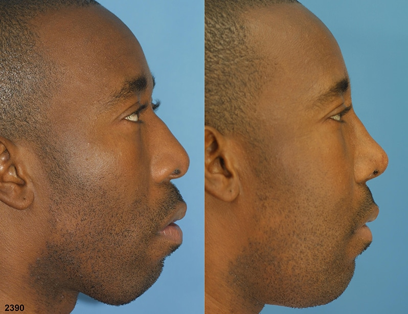 NYC Facial Plastic Surgery Rhinoplasty