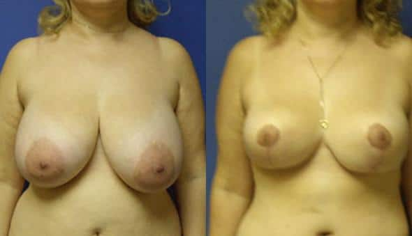 Procedure on breasts and breast reduction