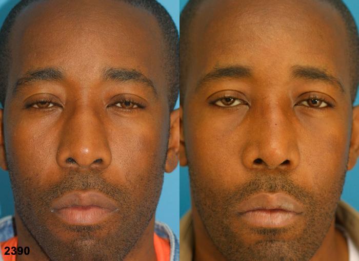 Procedure on nose and ethnic rhinoplasty