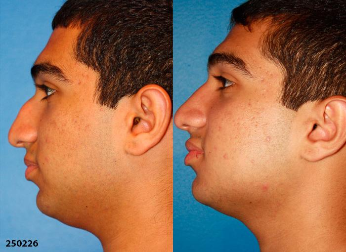 Procedure on nose and rhinoplasty