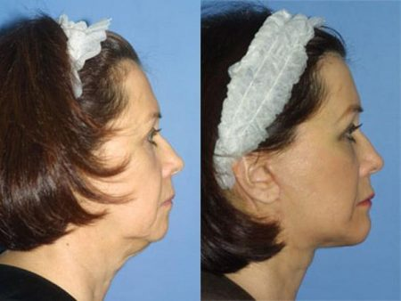 Image showing a female patient before and after her facelift surgery giving the patient a more youthful appearance.