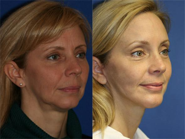 Before and after of CO2 laser resurfacing