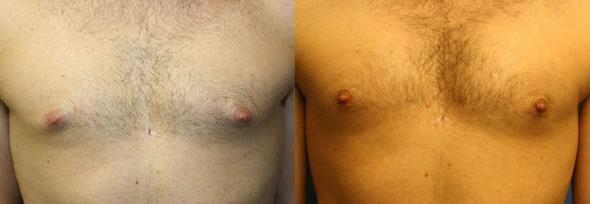 Procedure on body and gynecomasty