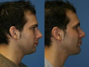 Before After photo of male rhinoplasty / nose job performed by Dr. Miller in his New York City facial plastic surgery office.
