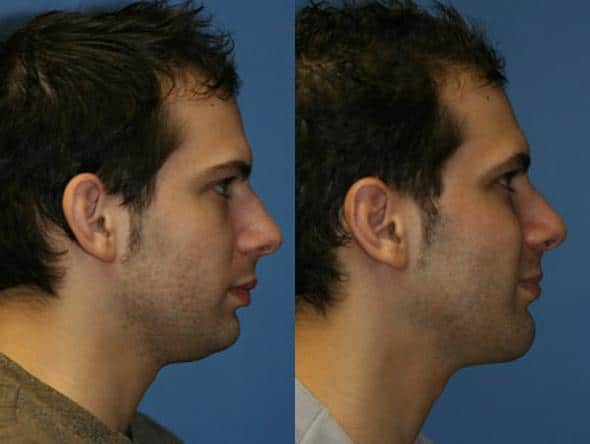 Before and after of a male rhinoplasty in New York