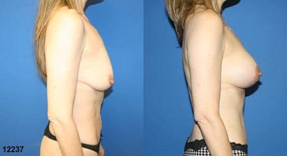 Procedure on body and gluteal augmentation