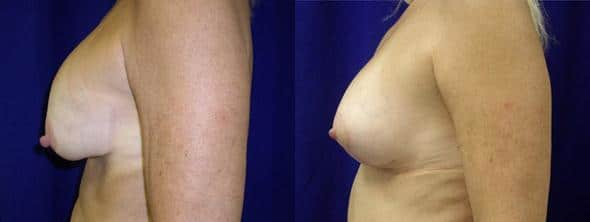 Procedure on breasts and breast lift