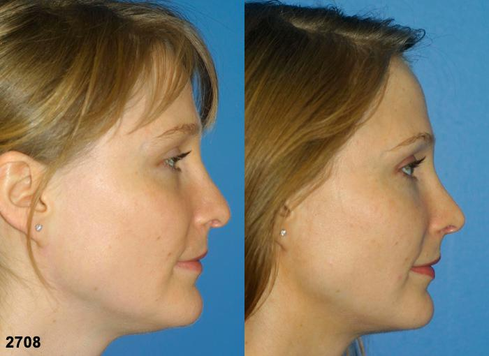 Procedure on nose and revision rhinoplasty