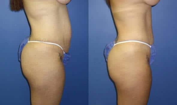 Procedure and tummy tuck