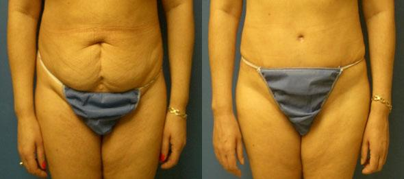 Procedure on body and tummy tuck revision
