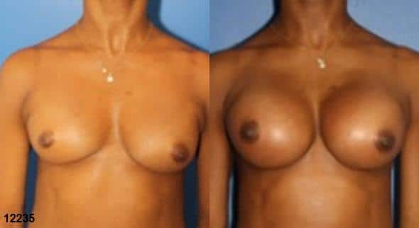 Procedure on breasts and breast augmentation