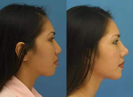 NYC Asian Nose Job Surgeon
