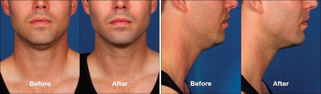 Kybella Chin Reduction Procedure