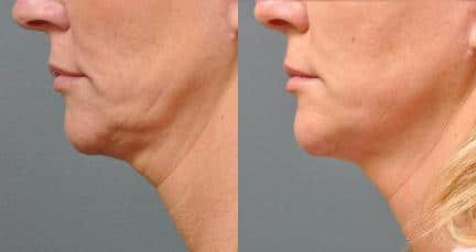 New York Non-Surgical Neck Lift
