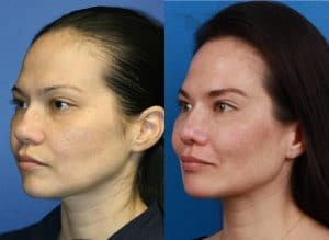 Before and After Results of Ethnic Rhinoplasty in NYC, NY