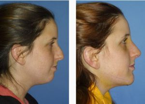 New York chin Plastic Surgery