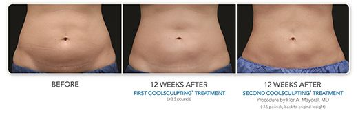 New York Fat Reduction Procedure