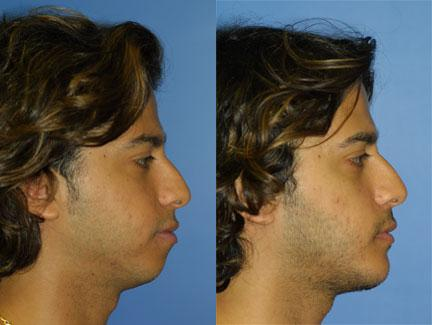 Chin and Cheek Augmentation New York, New York | Dr  Philip