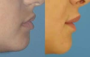 New York Lip Reduction Procedure