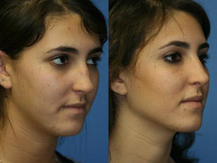 New York Rhinoplasty Correction