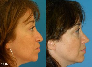 Image showing sides-shots before and after a woman got her nose corrected after a nose job, also known as rhinoplasty, New York, NY