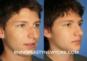 Teen Rhinoplasty Surgery New York