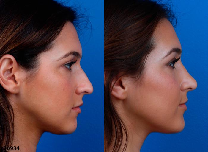 Persian Nose Job Surgeon