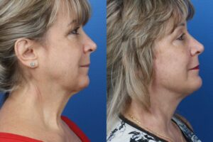 facelift and necklift surgery results to remove turkey neck from a patient in NYC, NY