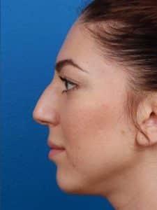 Rhinoplasty Surgery in NYC, NY