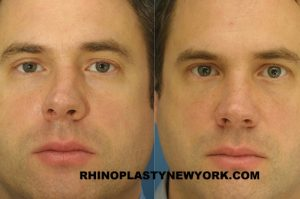 broken nose treatment nyc
