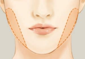 New York City Plastic Surgery Dr. Miller