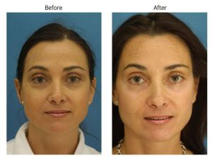 NYC Blepharoplasty before and after Procedure Results