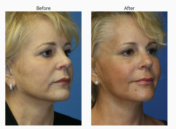 New York Anti-Aging Facial Surgery