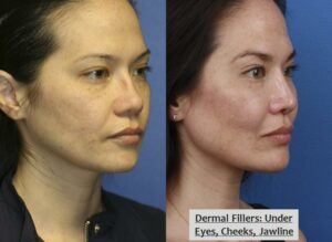 Injectable nose job results from liquid nose job expert in Manhattan, NY